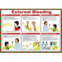 External Bleeding First Aid Posters 590mm x 420mm